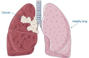 alternative-lung-cancer-treatments